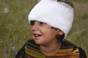 Young child with head wrapped in white gauze bandage