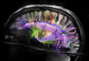 Scan of brain in black and white from the side, many small brightly colored fibers throughout