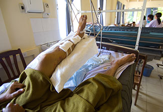 In a hospital bed, a patient's injured leg, which is covered in bandages, is elevated.