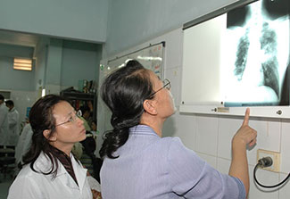 Two female medical workers examine a chest x-ray on a lightboard on the wall of a medical facility
