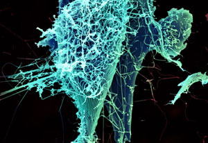 An electron microscopic view of Ebola virus particles, from NIAID