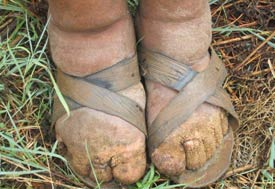 Close up of swollen, disfigured feet and toes in sandals due to podoconiosis