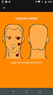 Screenshot of app to evaluate suspected leishmaniasis lesions shows back and front of face with three red indictors.