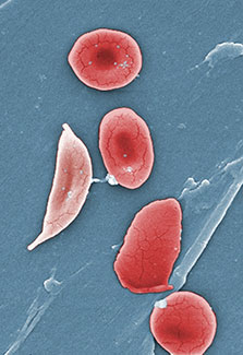 Slide showing red blood cells of someone with sickle cell disease.