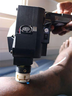 A smartphone confocal microscope held by a medical worker to a patient's leg.
