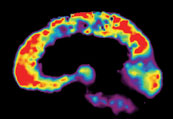 Colorful brain scan of brain with Alzheimer's disease on black background