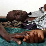 Man lying down in visible pain, his hand is held, in a hospital in Rakai, Uganda.