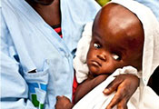 Close up of baby with hydrocephalus with extremely enlarged head held by a health care worker