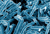 Scanning electron micrograph of Mycobacterium tuberculosis bacteria, which cause tuberculosis.