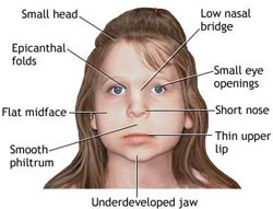 Diagram: face of young girl, full description below image