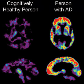 Brain scans show cognitively health brain next to brain of person with Alzheimer's disease