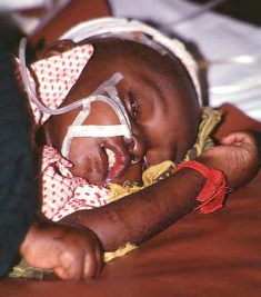 photo of a baby with malaria