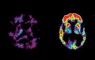 Brain scans show brain of person with Alzheimer's disease next to cognitively health brain